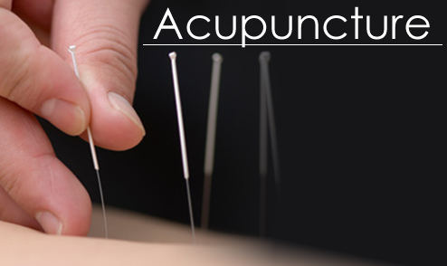 Image result for Acupuncture Tips That Can Help You Know What To Expect
